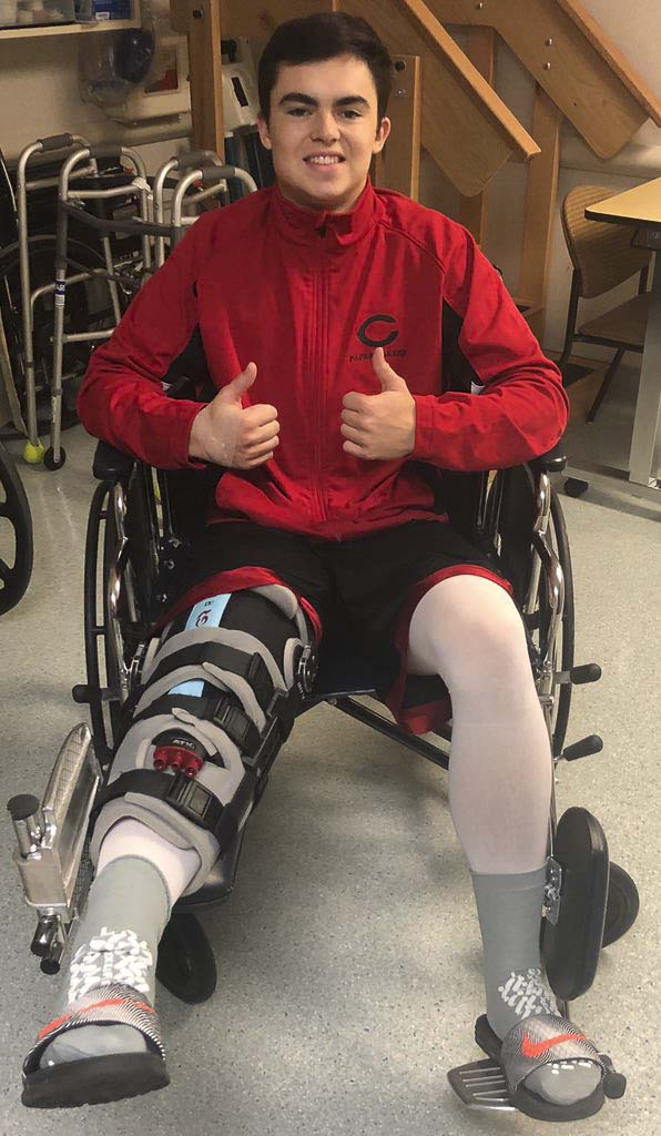 Andrew Boyle said surgery to repair his right knee was a success Thursday. The Camas quarterback/safety/kicker saw his season come to an end last week. Photo courtesy Kevin Boyle