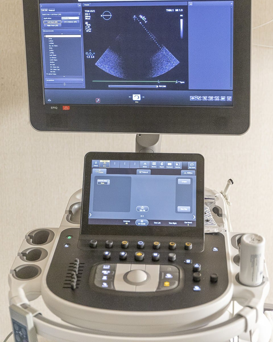 A special kind of ultrasound machine, known as an echocardiogram, is seen here. It is the primary tool for preliminary examinations for PH. Photo by Mike Schultz